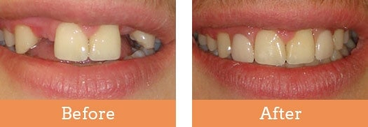 Denture Clinic Abbotsford