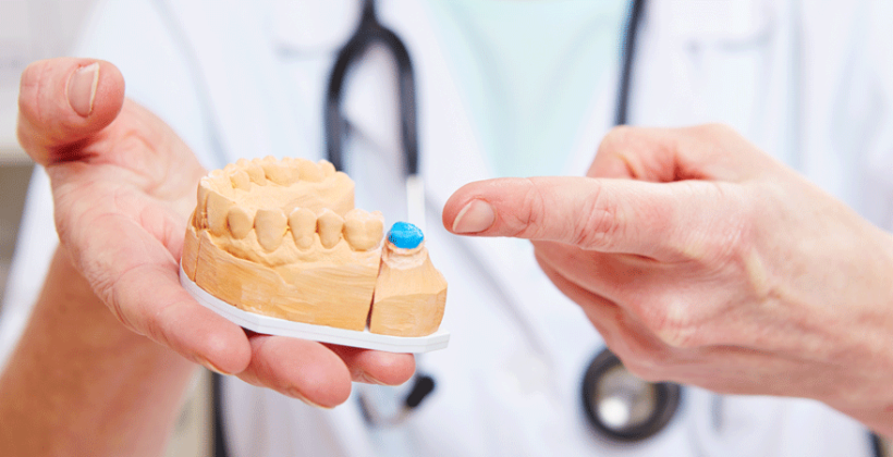 Ultimate Guidance for Good Oral Health