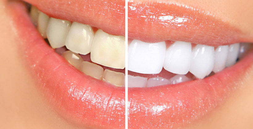 Straighten Up your Dancing Teeth with Cosmetic Dentistry