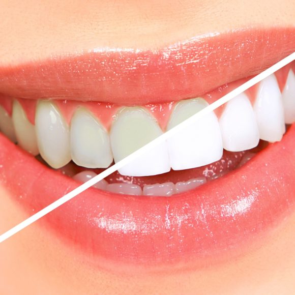 Teeth Whitening at Abbotsford Dental Clinic